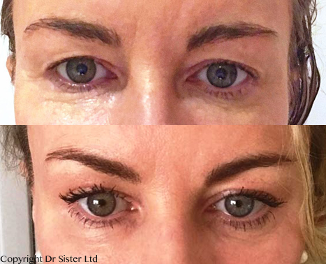 Dracula PRP Rederm – Dr Sister's brand new enhanced PRP treatment